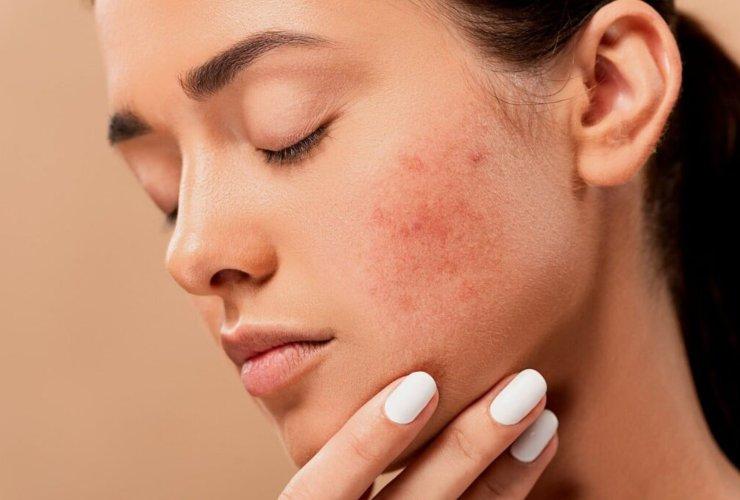 acne-eczema e psoriasi vengono curarle con l'alimentazione-Meteoweek.com